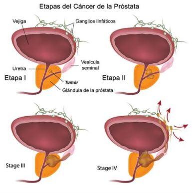 Cancer a la prostata