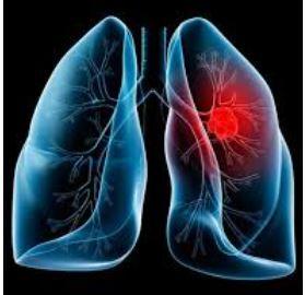 Cancer a los pulmones