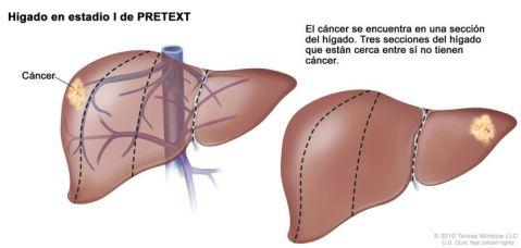 Cancer de Hígado